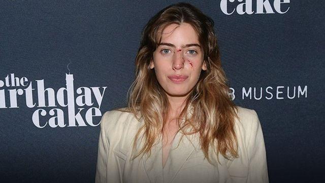 Clara McGregor fue mordida por un perro en el rostro y así acudió al estreno de 'The Birthday Cake'